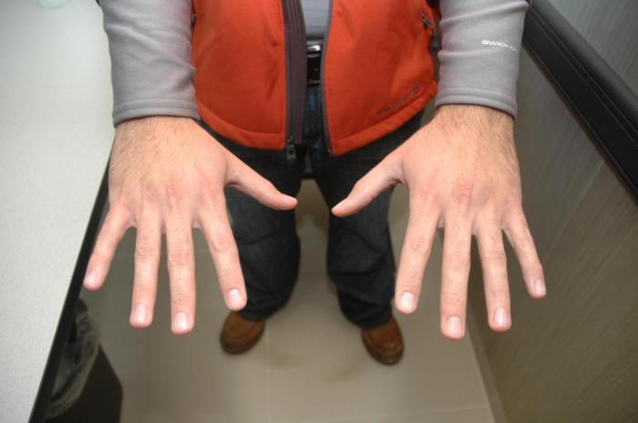 (George Zimmerman's hands about 45 minutes after he killed Trayvon Martin look pristine)